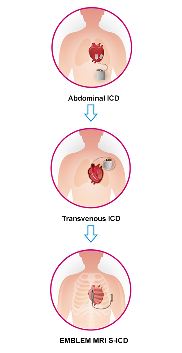 ICD Device Evolution to S-ICD