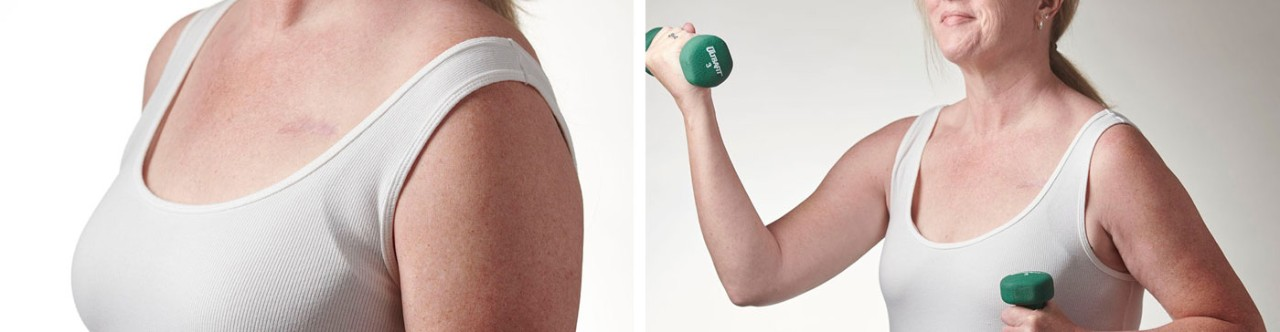 Female transvenous ICD patient device scar and Female transvenous ICD-patient lifting weights